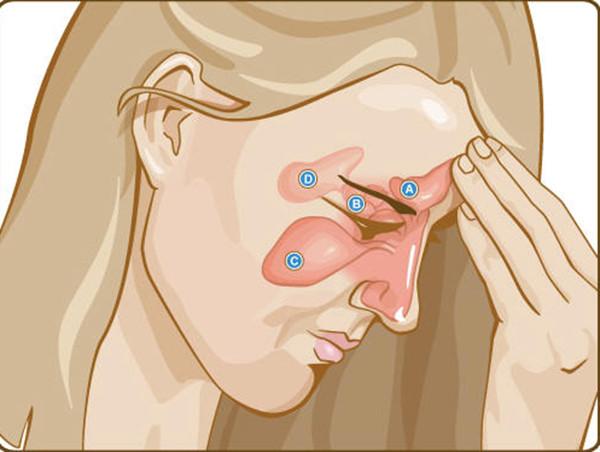 Tratamento da dor de origem dentaria
